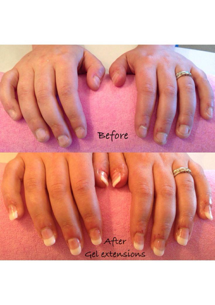Gel overlays on bitten nails