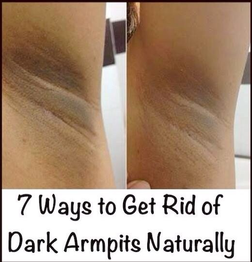 7 Ways to Get Rid of Dark Armpits Naturally PLEASE LIKE  BEFORE SAVE  AND FOLLOW ME  FOR MORE TIPS