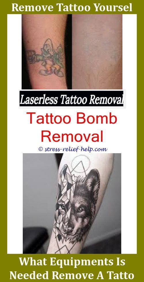 Tattoo Supplies Does Numbing Cream Work For Tattoo Removal,tattoo ...
