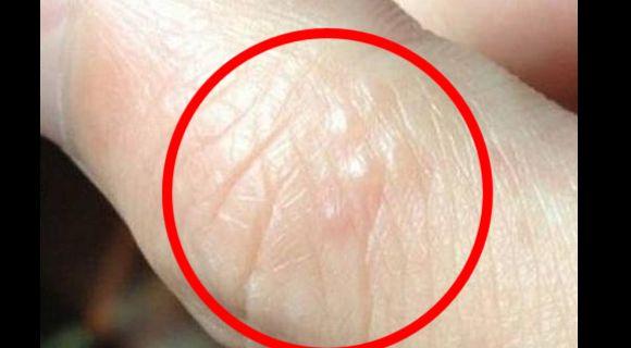 Mohon Sebarkan !!! Jangan Buat Main-Main Jika Bintik Air Seperti Ini Sering Timbul Di Jari Anda!   Mynewshubonline- Kebanyakan orang jarinya kadang kadang muncul bintik-bintik kecil di manabintik-bintik ini tidak kelihatan besar jarang kita akan memberi perhatian kepada bintik-bintik seperti ini tetapi j sebenarnya bintik-bintik seperti yang harus diperhatikan dengan teliti.Bintik-bintik kecil pada jari menunjukkan penyakit yang ada dalam tubuh kita dan juga akan menunjukkan kalau pada badan…