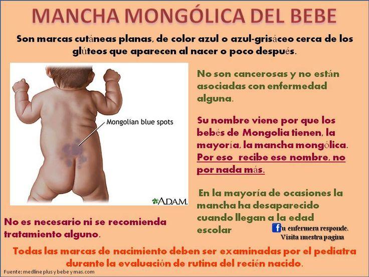 Mancha mongolica bebe