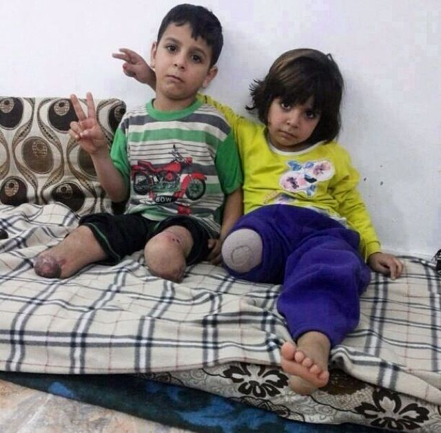 Children of Syria - many are now amputees