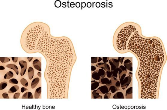 How to use home remedies for osteoporosis treatment naturally? As we age, our body loses its young richness. That is the common course of life. We wom...