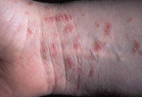 Scabies mite infestation on wrist and arm