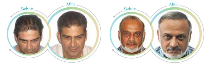 Different Hair Loss Issues and Possible Treatment Options click at http://goarticles.com/article/Different-Hair-Loss-Issues-and-Possible-Treatment-Options/9135841/