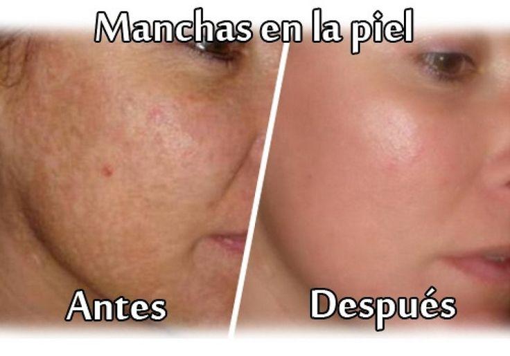 Manchas en la piel, consejos para eliminarlas | Cuidar de tu belleza es facilisimo.com
