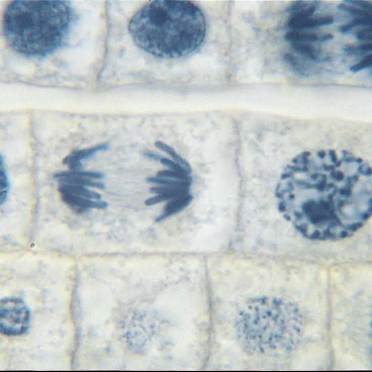 Onion Mitosis Root Tip Microscope Slides   Carolina.com