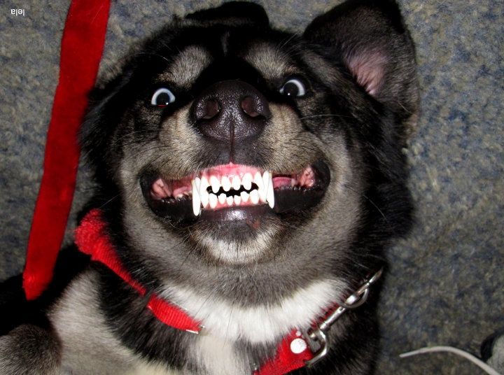 do i need braces?