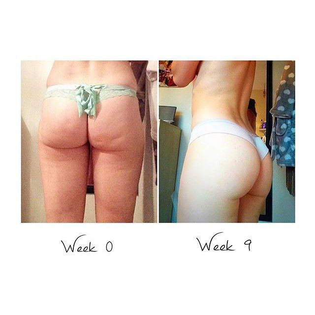 If You've Been Trying to Get a Bigger Booty, You NEED to Check This Out