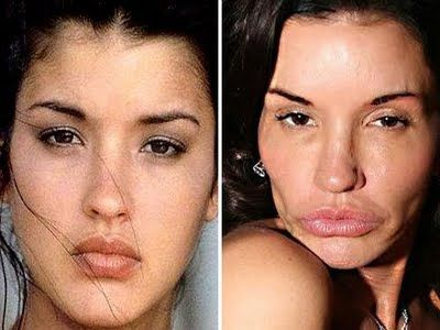 janice dickinson before surgery | Janice Dickinson before and after cosmetic surgery? (images hosted by ...