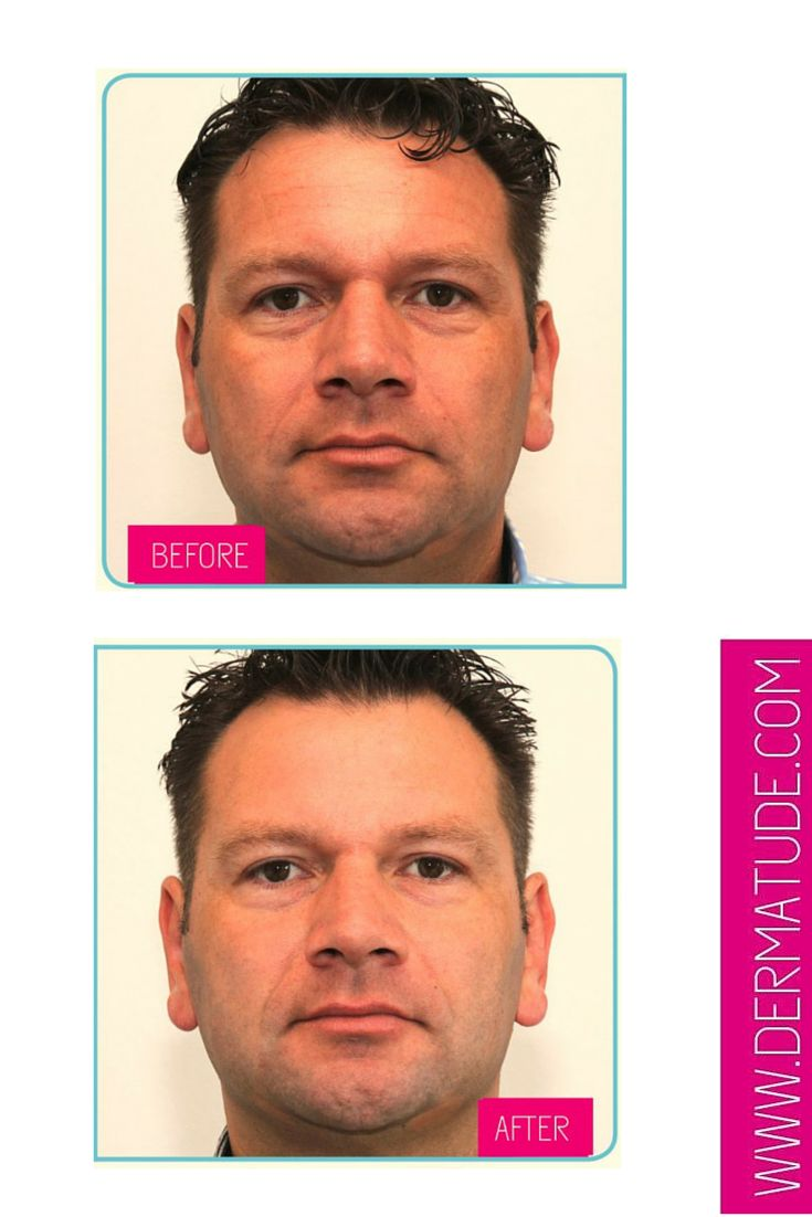 #Dermatude Before and After Facial-Front