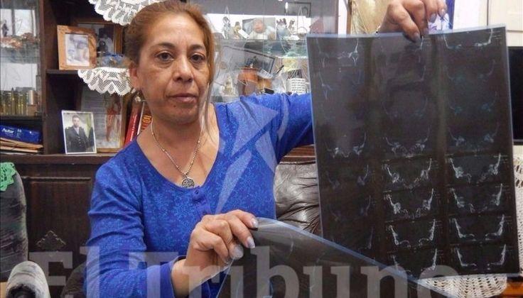 María Luisa Velis tenía un tumor maligno de ocho centímetros en la cabeza que desapareció luego de visitar la imagen que está en el barrio Marco Avellaneda.