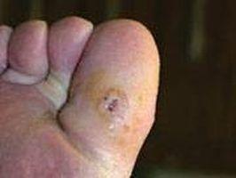 Healing skin ulcer