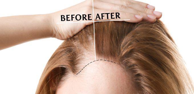 Was Hilft Gegen Haarausfall Bei Frauen