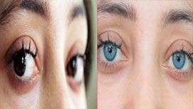 Baby blue with limbal ring..One of the patient's photos.