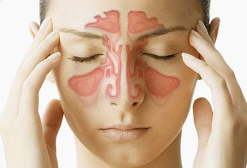 Sinus Infection, 11 Chronic & Acute Symptoms, Pictures & Home Remedies