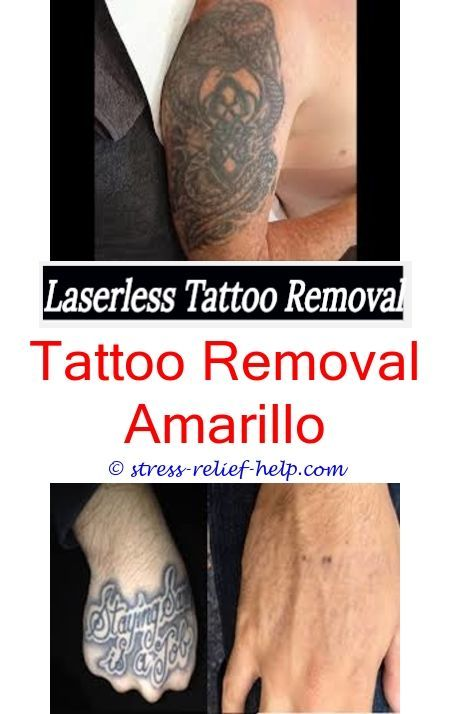 tattoo goo can laser hair removal affect tattoo - how to remove ...