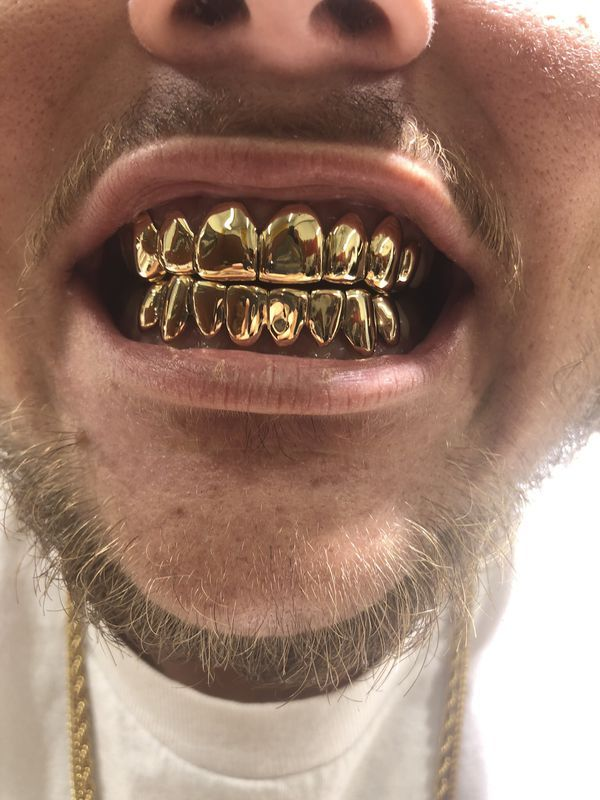 Gold Teeth Miami : teeth, miami, Grillz, Miami, Gardens,, OfferUp, Grillz,, Teeth