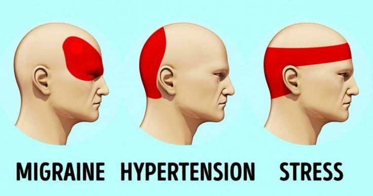 drukpunten voor hoofdpijn