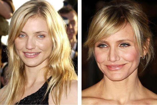 Cameron Diaz Plastic Surgery Before & After - http://plasticsurgerytalks.com/cameron-diaz-plastic-surgery-before-after/