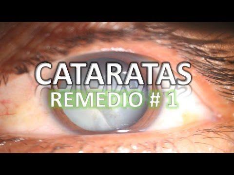 Cataratas | Remedios Caseros | Cataratas De Ojos | El Mejor Remedio - YouTube