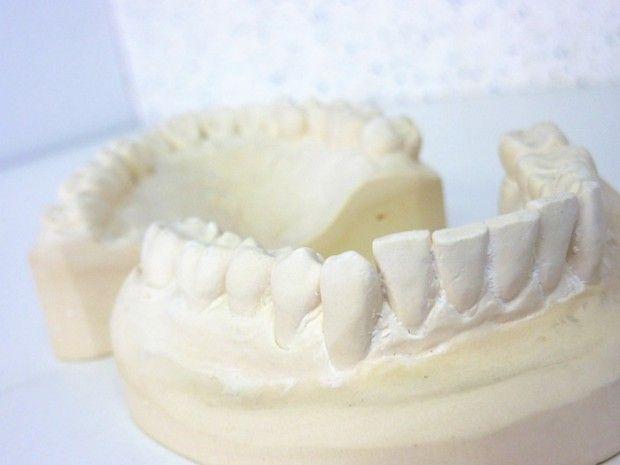 歯が黒いだけが虫歯じゃない?白い虫歯も実在していた!【歯医者監修】