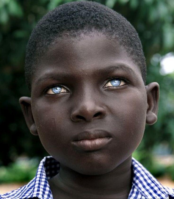 Blue Eyed People | Black People with Blue Eyes: Natural Phenomenon or Genetic Mutation?