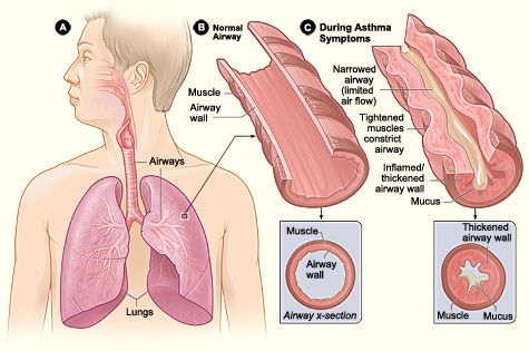Figure A shows the location of the lungs and airways in the body. Figure B shows a cross-section of a normal airway. #asthma #airways #breathing #allergies #health #inhaler