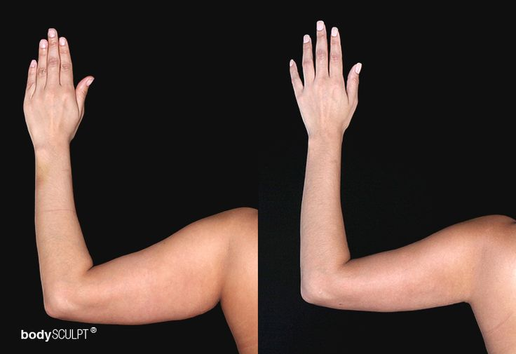 Arm Liposuction can help you achieve well-sculpted arms with a minimal downtime …