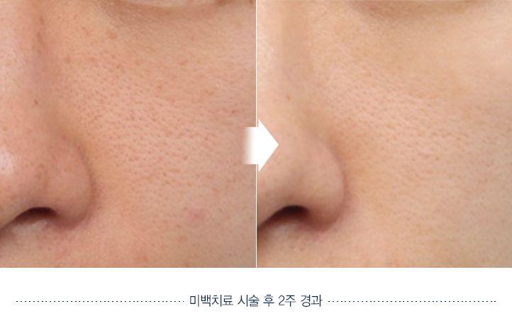 Skin whitening Before and after. Website: en.daprs.com #DApasticsurgery #plasticsurgery #koreaplasticsurgery #cosmeticsurgery #koreanbeauty #dermotolgy #skincare #skintreatment #clearskin #beautiful #koreanplasticsurgery #confident #beforeafter #beforeandafter #skinclarify #clarify #whitening #whiteskin
