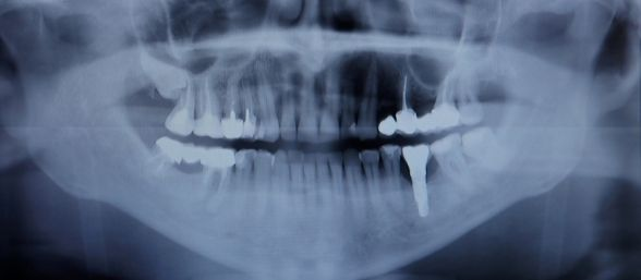 Células madre regeneran dientes