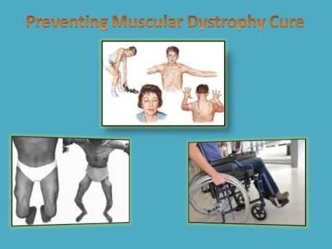 Muscular dystrophy (MD) is the outcome of problems in genetic composition of the employee. This ailment avoids the body from structure and maintaining healthy muscular tissue cells. Muscular dystrophy is a genetic disease that induces different muscles to deteriorate and worsen with time. There are several various kinds of MD which can affect various muscular tissues and have various results.