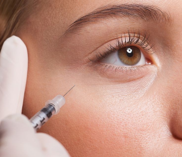 Here's Everything You Need to Know About Botox | from InStyle.com