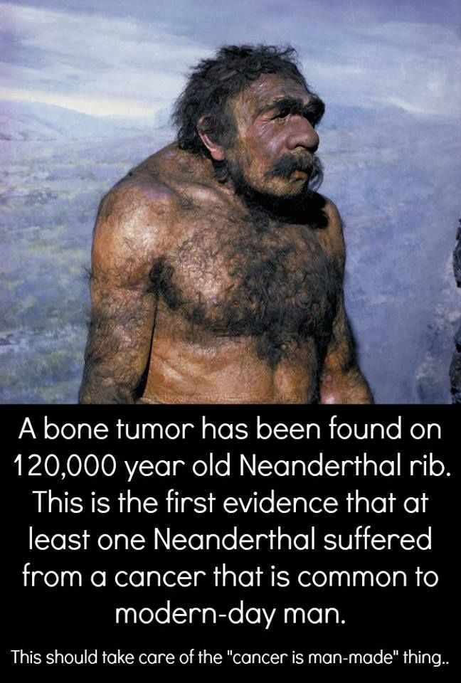 This discovery of a fibrous dysplasia predates previous evidence of this tumor by well over 100,000 years. Prior to this research, the earliest known bone cancers occurred in samples approximately 1000-4000 years old. The cancerous rib, recovered from Krapina in present-day Croatia