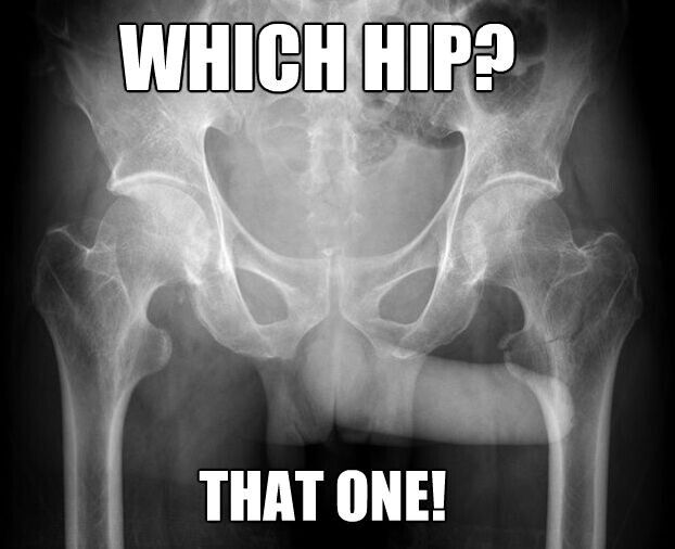 Xray humor, radiology humor. Yup, it always points to the side that hurts, lol.