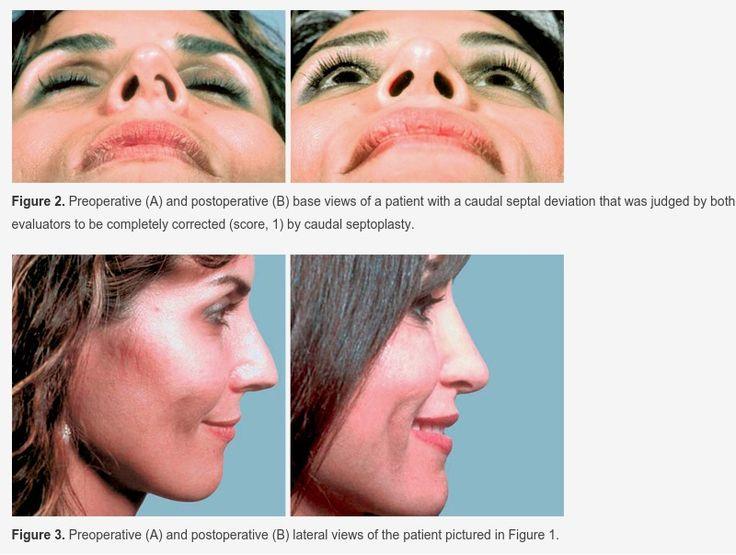 Caudal Septoplasty for Treatment of Septal Deviation