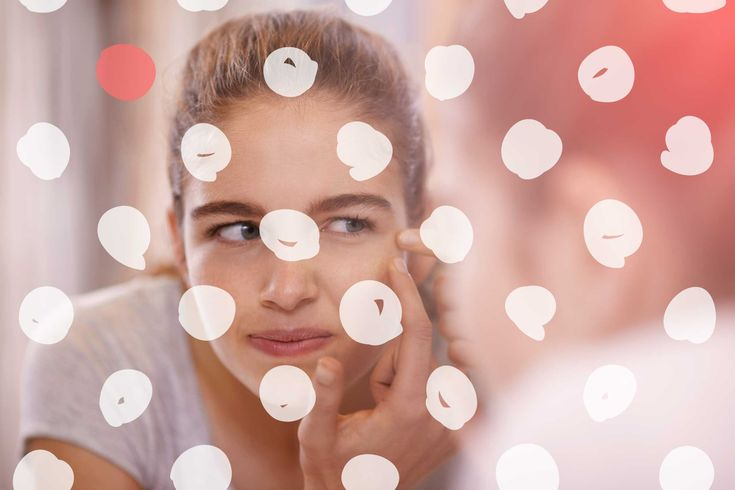 Here's What Your Acne Breakout Is Actually Telling You - http://healthbeautytrainer.com/health/heres-what-your-acne-breakout-is-actually-telling-you/