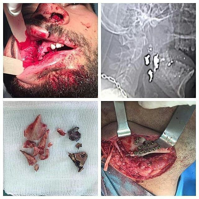 Repost by: @dr_nima_sadeghi Fractura mandibular complicada debido a asalto por arma de fuego. Traducción l Translation. Mandibular complicated fracture due to gunshot assault. #maxillofacial #mandibularfracture #openteduction #airway #bullet #humanteeth #cirurgiaoral #dentalpicture #oralsurgery #oralmedicine #surgery #odontology #student by odontologystudent Our Oral Surgery Page: http://www.myimagedental.com/services/oral-surgery/ Google My Business…