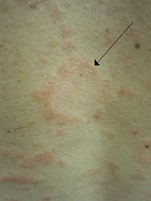 """Pityriasis rosea is a skin rash. It is benign but may inflict substantial discomfort in certain cases. Classically, it begins with a single """"herald patch"""" lesion, followed in 1 or 2 weeks by a generalized body rash lasting about 6 weeks."""