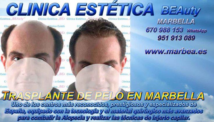Tratamiento capilar Marbella Málaga y Mijas tatuaje Sevilla    en Huelva en Jaén en Madrid en Marbella en Mijas en Motril en Murcia en Sevilla en Málaga en Nerja en San Pedro en Sevilla en Torremolinos en Valencia en Puerto Banus en...