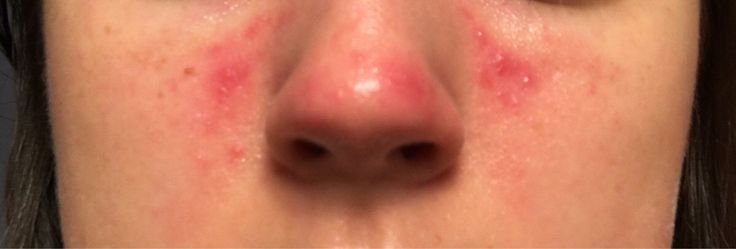 [Skin Concern] I have been breaking out in nose/cheek area; I never break out besides a random zit every now and then. Won't go away. Not sure what to do.