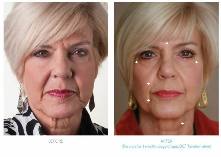 Want to get results like this from the privacy of your own home? AgeLoc Galvanic face Spa, Pre Order Now!!! $450 plus shipping. Email me at mailto:jessica@yo... for an $85 discount! Want to get one for free? Email me for details!!!!