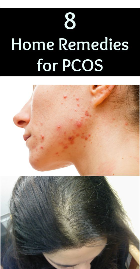 Although there is no cure for PCOS, it can be controlled. Some simple home remedies and lifestyle changes can help manage the symptoms of PCOS and reduce complications. Here are 8 Effective Home Remedies for PCOS - Selfcarers