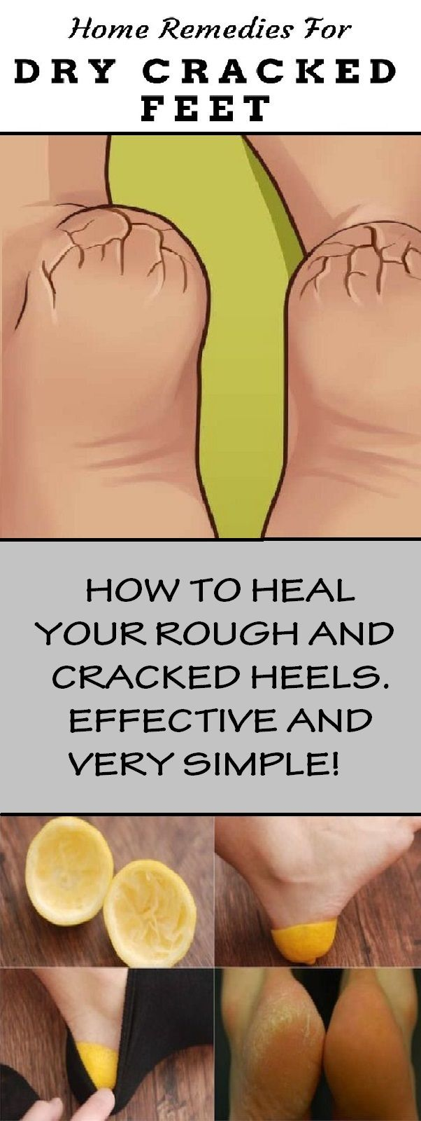 HEAL/ROUGH/CRACKED HEELS/skin/lemon