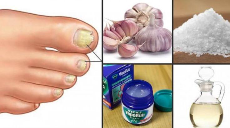 5 remédios caseiros para remover fungos das unhas