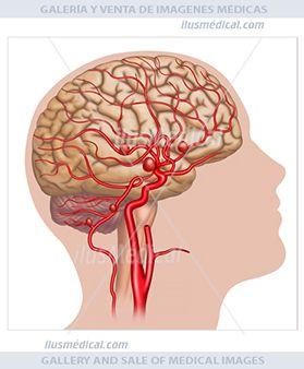 Aneurismas cerebrales. Ilustración esquemática y descriptiva. El aneurisma cerebral es ...