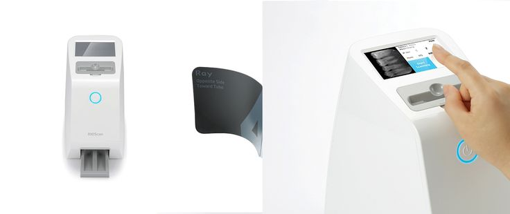 Intra Oral Imaging System
