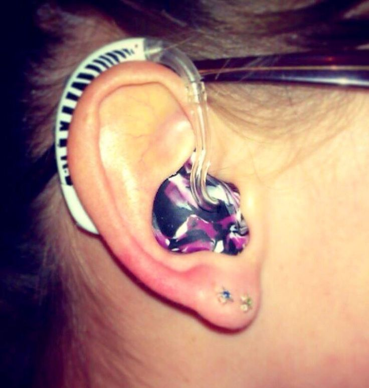 57 Best Hearing Aids Decoration Images On Pinterest