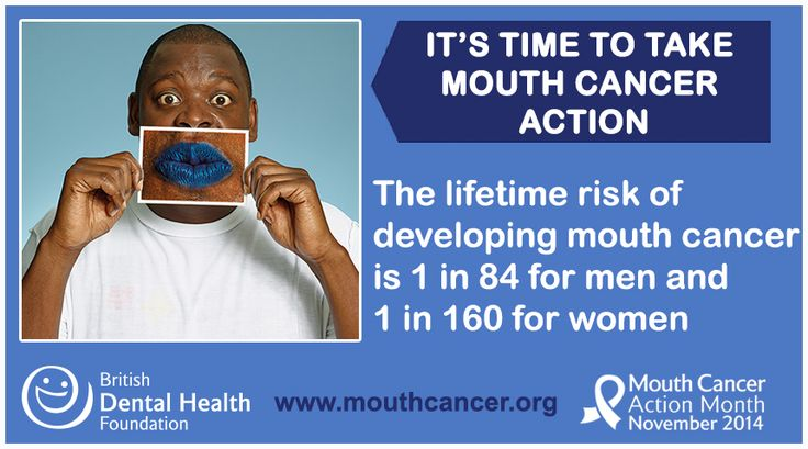 The lifetime risk of developing mouth cancer is 1 in 84 for men and 1 in 160 for women! If in doubt get checked out! #Bemouthaware #MCAM14 #bluelipselfie #MouthCancer