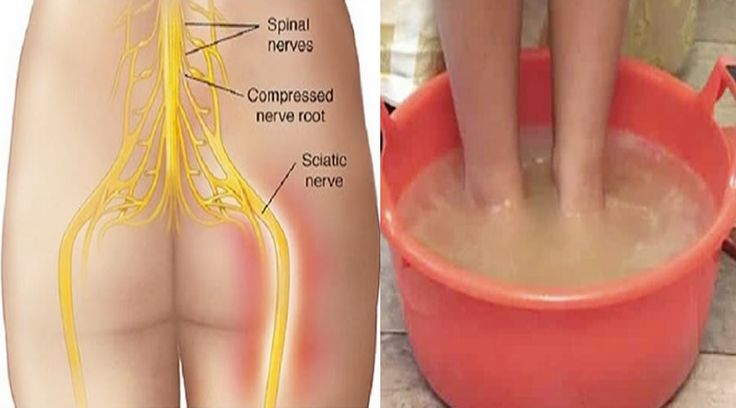 The sciatic nerve is the longest nerve in the human body. It`s inflammation produces a very uncomfortable pain that extends from the ribs...